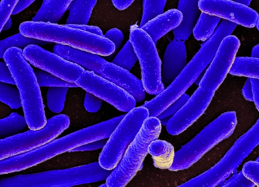 Scanning electron micrograph of Escherichia coli